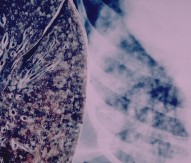 Biomarker project to investigate lung transplantation