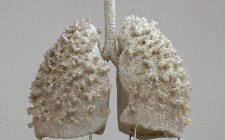 Breakthrough in cystic fibrosis drug testing
