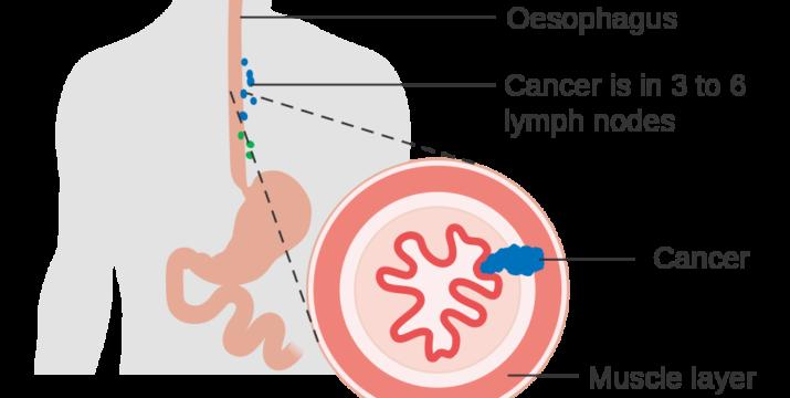 © Cancer Research UK uploader